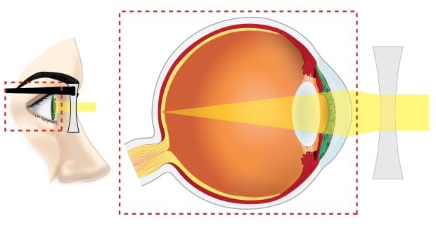 Eye_Cx_Corr_newface-01